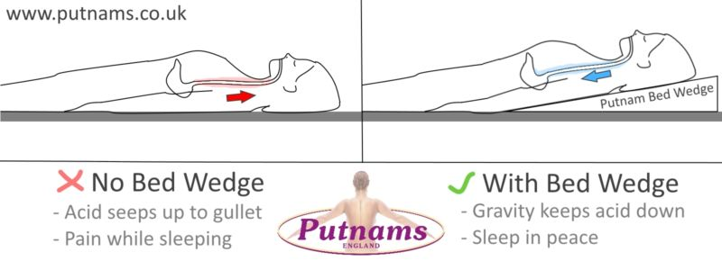 Putnams Bed Wedge - Acid Reflux graphic
